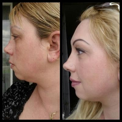 эффективные процедуры для похудения отзывы