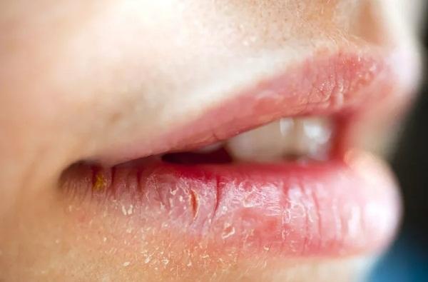 губы потрескались и болят